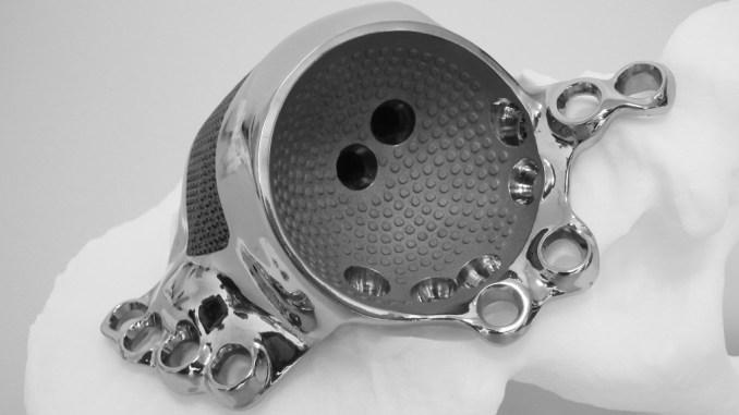 Протез, созданный по технологии 3D печати металлом