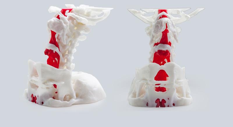 Создание медицинского макета на 3D принтере