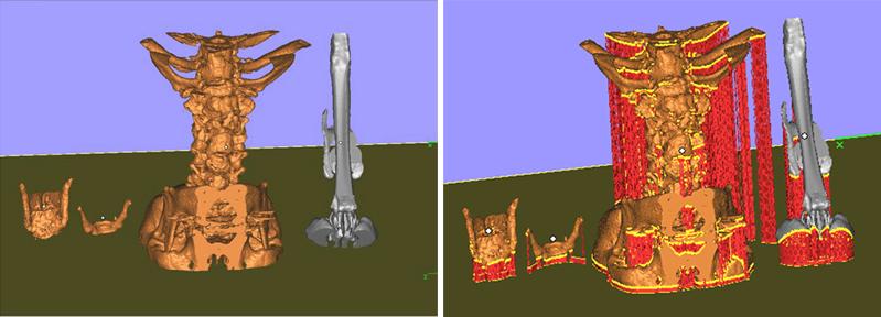 3D модель позвоночника и трахеи